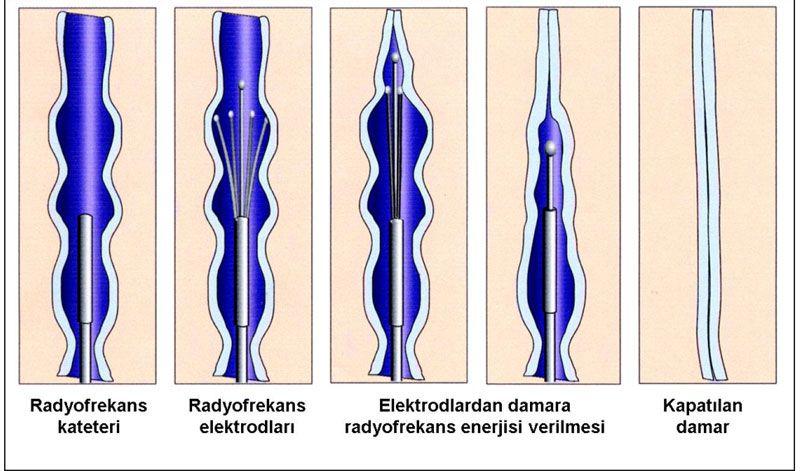 eczane testosteron