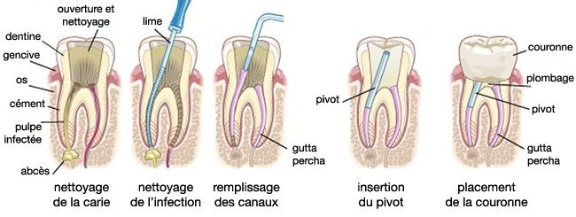 root-canal-step-by-step-fr