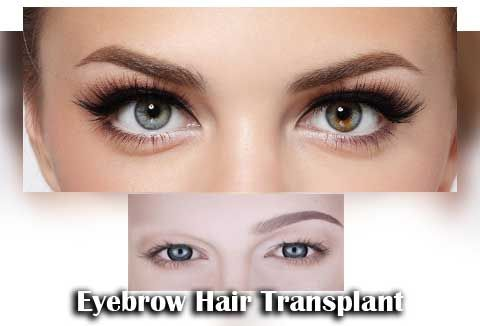 1Eyebrow-Hair-Transplant
