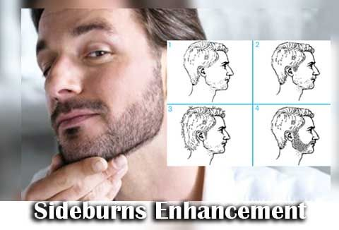 1Sideburns-Enhancement