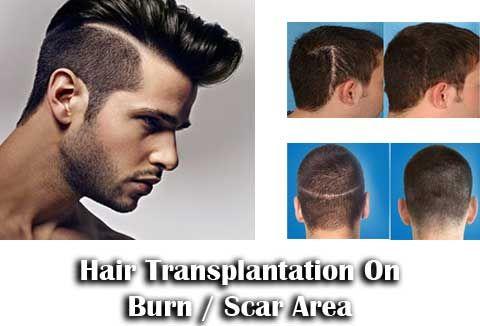 Hair Transplantation On Burn / Scar Area