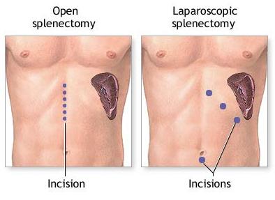 karaciğerde ekojen solid lezyon nedir